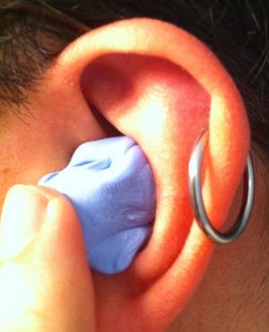 left ear 1