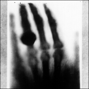 The first medical X-ray