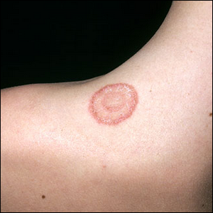 Skin Infection That Looks Like Ring Worm