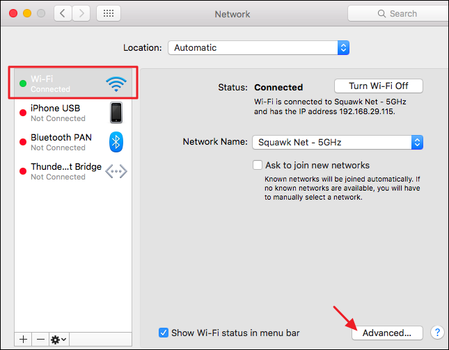 """Choose your network connection and then click the """"Advanced"""" button"""