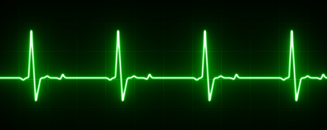 What Is An EKG, and How Does It Work In The New Apple Watch?