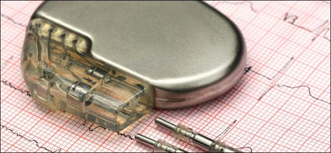 A pacemaker sitting on an electrocardiograph.