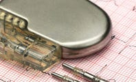 Can Pacemakers (and Other Medical Devices) Really Be Hacked?