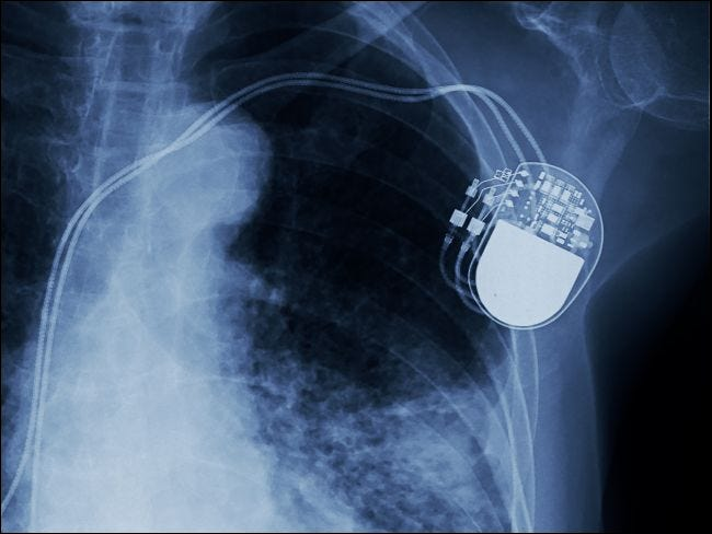 X-ray showing an implanted pacemaker.