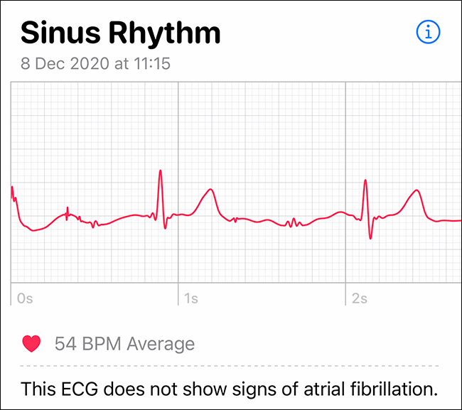 the authors beautiful normal heart rate