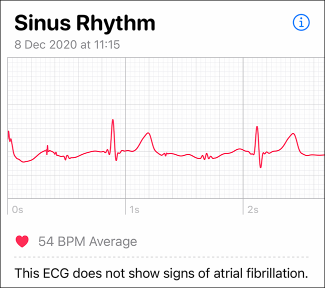 the authors nice normal heart rate rhythm