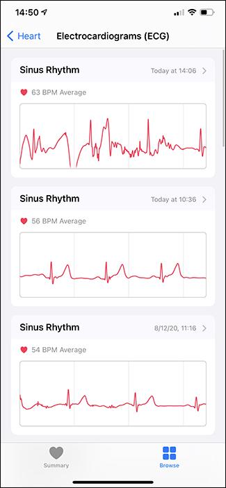 ecgs in health app