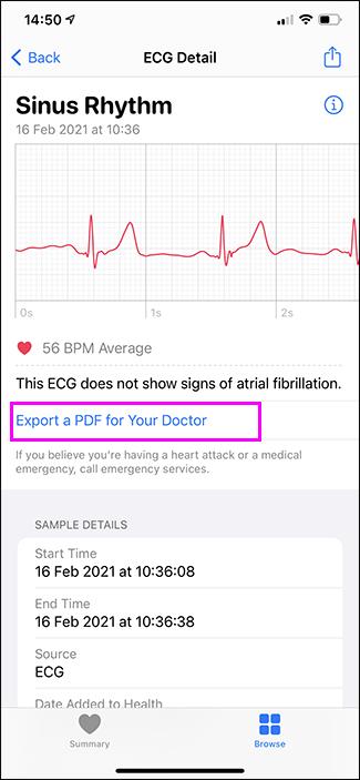 individual ecg in health app