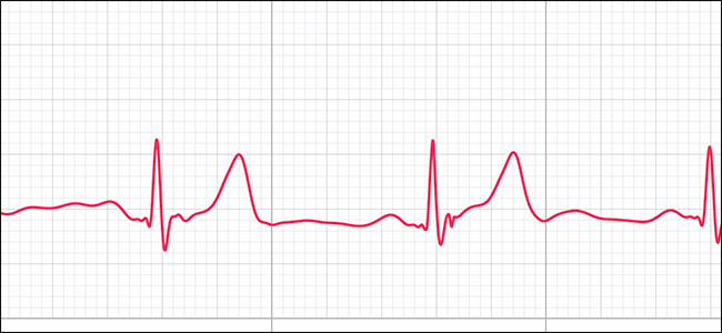 preview image showing ECG track