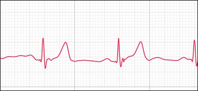 immagine di anteprima che mostra la traccia ECG