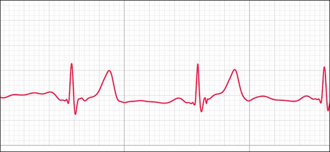 Visualização de ECG mostrando ritmo sinusal