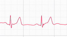 How to Check Which Apple Watch ECG App Version You Have