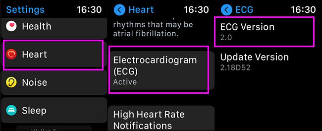 verificando a versão ecg no apple watch